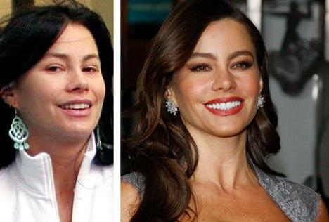 Sofia Vergara Plastic Surgery Nose Job