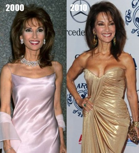 Susan Lucci Breast Implants