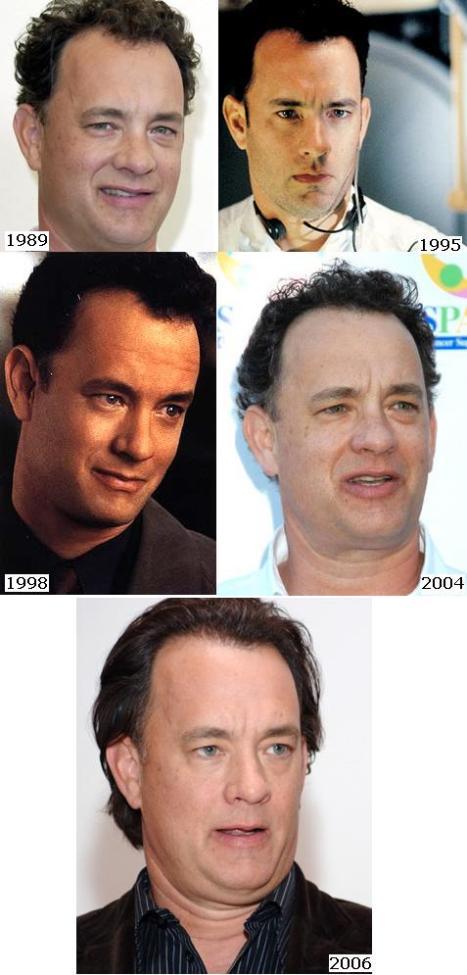 Tom Hanks Hair Transplant Before After